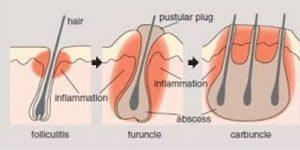 penyakit kulit furunkel
