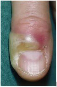 penyakit kulit pionikia